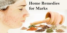 Home Remedies for Acne Marks Treatment