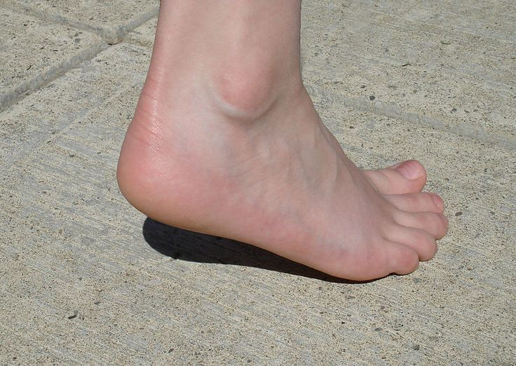 Causes of Cracked Heels - How To Deal With Heel Fissures