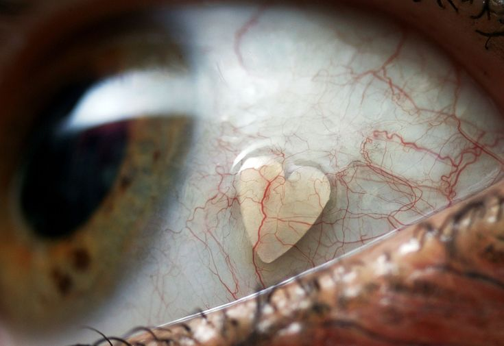 Some girl had a platinum heart implanted in her eye. Apparently, this is popular in the Netherlands. But that looks like it freaking hurts!