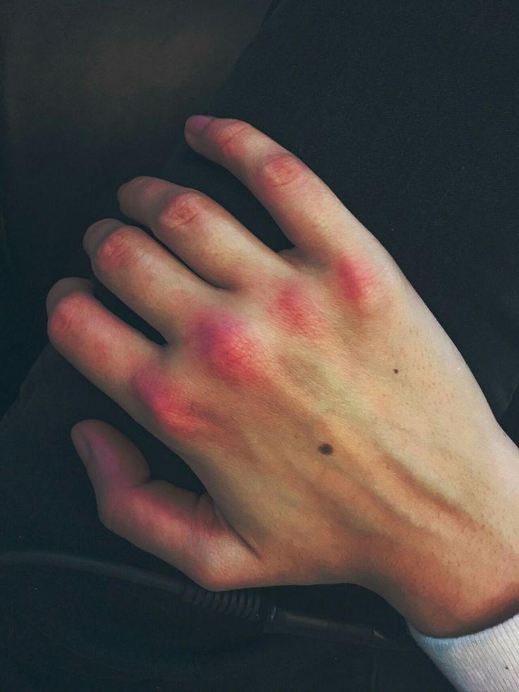 Разбитые руки девушек картинки