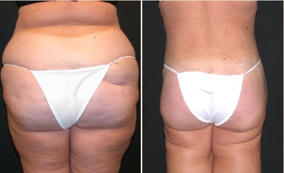 Patient had two large volume Liposuction procedures, first stage was waist and upper buttocks, and second stage was hips, outer thighs and lower buttocks. This was followed with an Extended Tummy Tuck, Flankplasty and Upper Buttocks Lift.