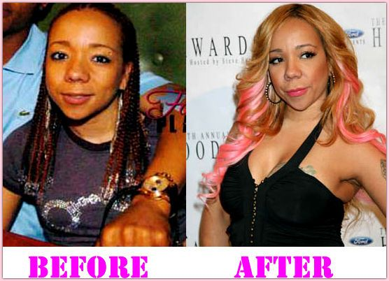 Tameka Cottle Plastic Surgery Before And After Tameka