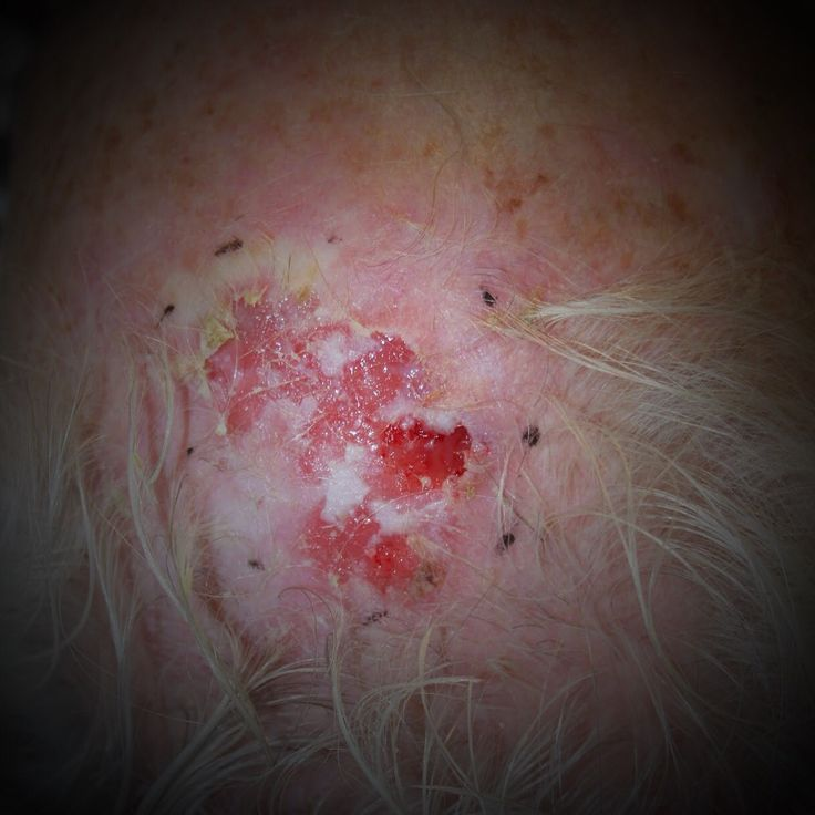 77 best images about squamous cell carcinoma information