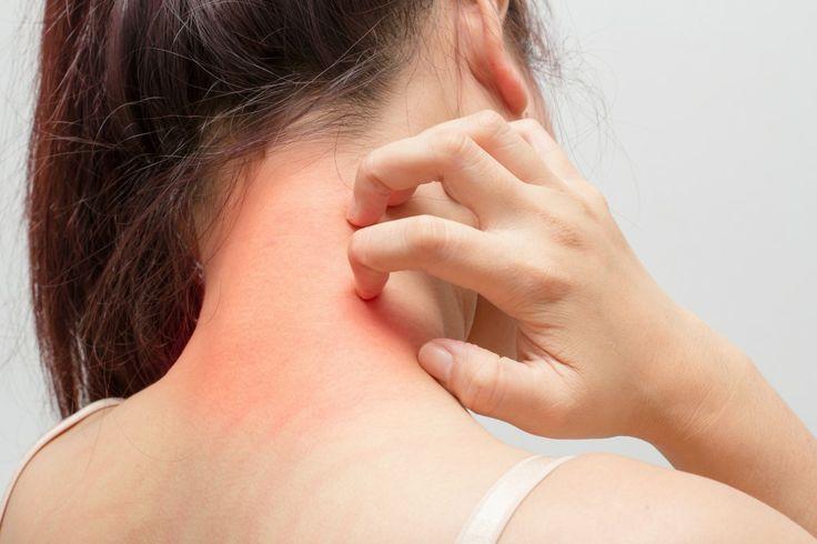 Os 10 Principais Sintomas de Alergia Medicamentosa | Dicas de Saúde