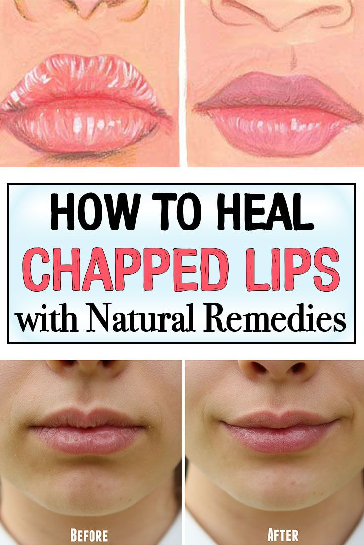 98524833a5c I totally dislike the sensation of chapped lips. But who doesn t  Treat  your chapped lips fast by trying these natural remedies.