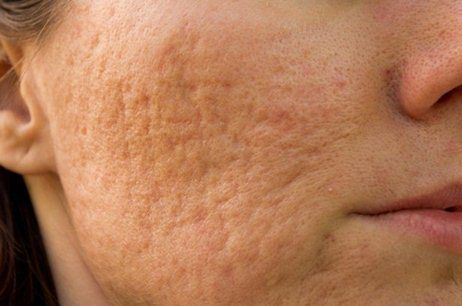 How to get rid of acne and scars?