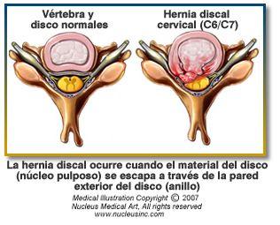 Si la lechera duele la parte inferior del vientre y la espalda