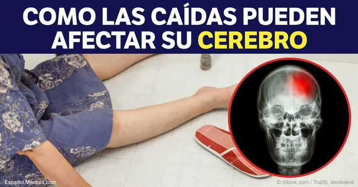 Las caídas son la causa más común de una lesión cerebral traumática entre las personas de edad avanzada http://articulos.mercola.com/sitios/articulos/archivo/2017/04/13/caidas-entre-personas-de-edad-avanzada.aspx