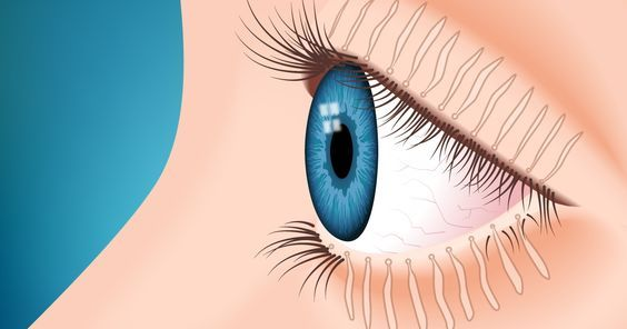 Meibomian gland dysfunction is the leading cause of dry eye.