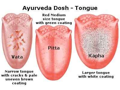 Ayurveda tongue dosha imbalance