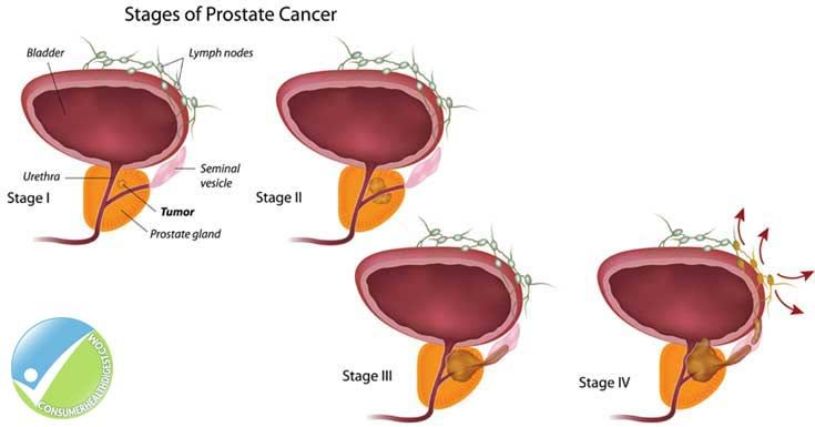 Prostate Cancer: Symptoms, Causes Treatment And More - Cancer