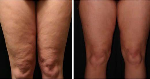 La cellulite compare quando le cellule adipose, incaricate di depositare i grassi, crescono in modo [Leggi Tutto...]