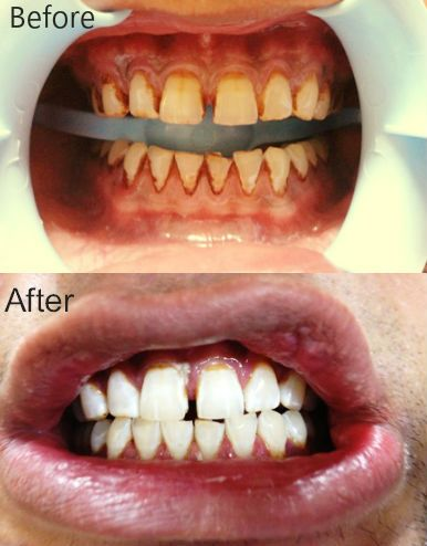 If you are suffering from stained or yellow teeth cosmetic dentistry is the right solution for you. It can help you gain 8 shades brighter teeth in few hours. For more details http://www.dentalclinicdelhi.com/cosmetic-dentistry