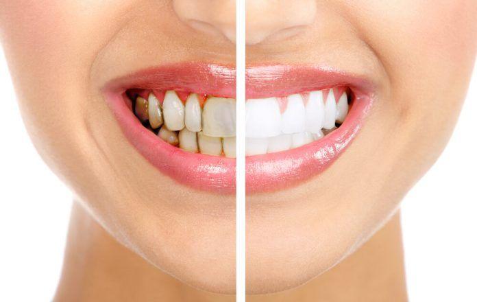 4 смеси, которые полностью удаляют зубной камень   В мире интересного