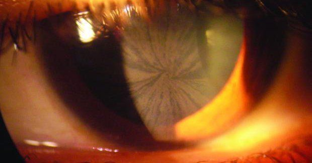 Signos de la Enfermedad de Fabry:Opacidad de la Córnea  La opacidad de la córnea es particular y consiste en líneas finas con un patrón radiado (similar a los radios de una rueda de bicicleta). Este tipo de opacidad no afecta la visión y sólo puede ser detectado con un instrumento llamado oftalmoscopio o lámpara de hendidura utilizado para exámenes rutinarios de la vista. La opacidad corneal es causada por la acumulación de GL-3 en los vasos sanguíneos del ojo y es otro síntoma que puede…