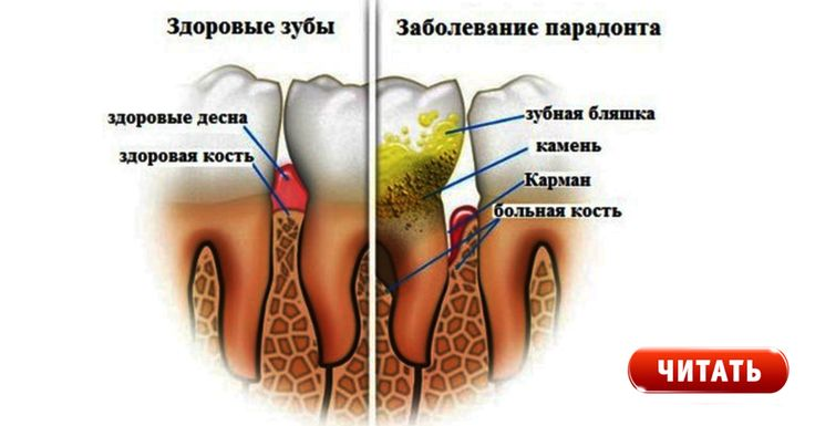 Избавься от зубного камня! Поможет 1 простое средство.