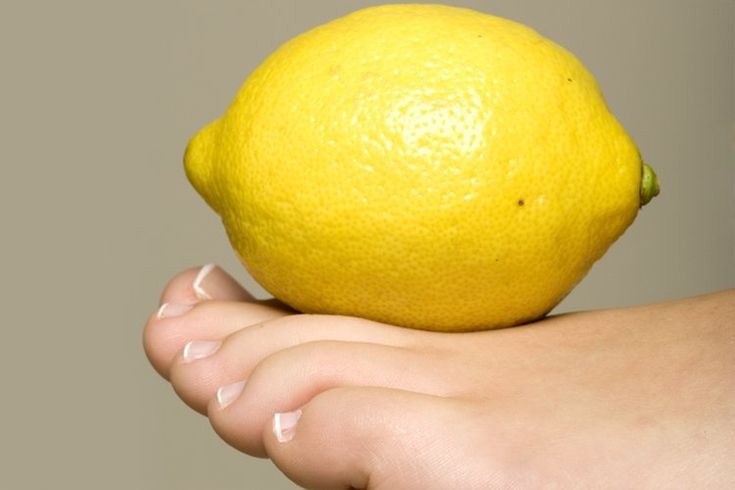 Home Remedies to Get Rid of Yellow Toenails