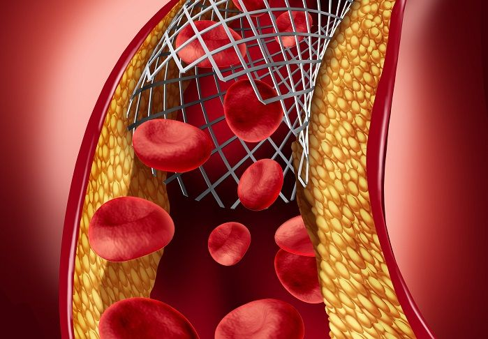 A major international study has found that drug-eluting stents, a less-invasive alternative to bypass surgery, are as effective as surgery for many patients with a blockage in the left main coronary artery. Findings from the EXCEL (Evaluation of XIENCE versus Coronary Artery Bypass Surgery for Effectiveness of Left Main Revascularization) trial were published in the …