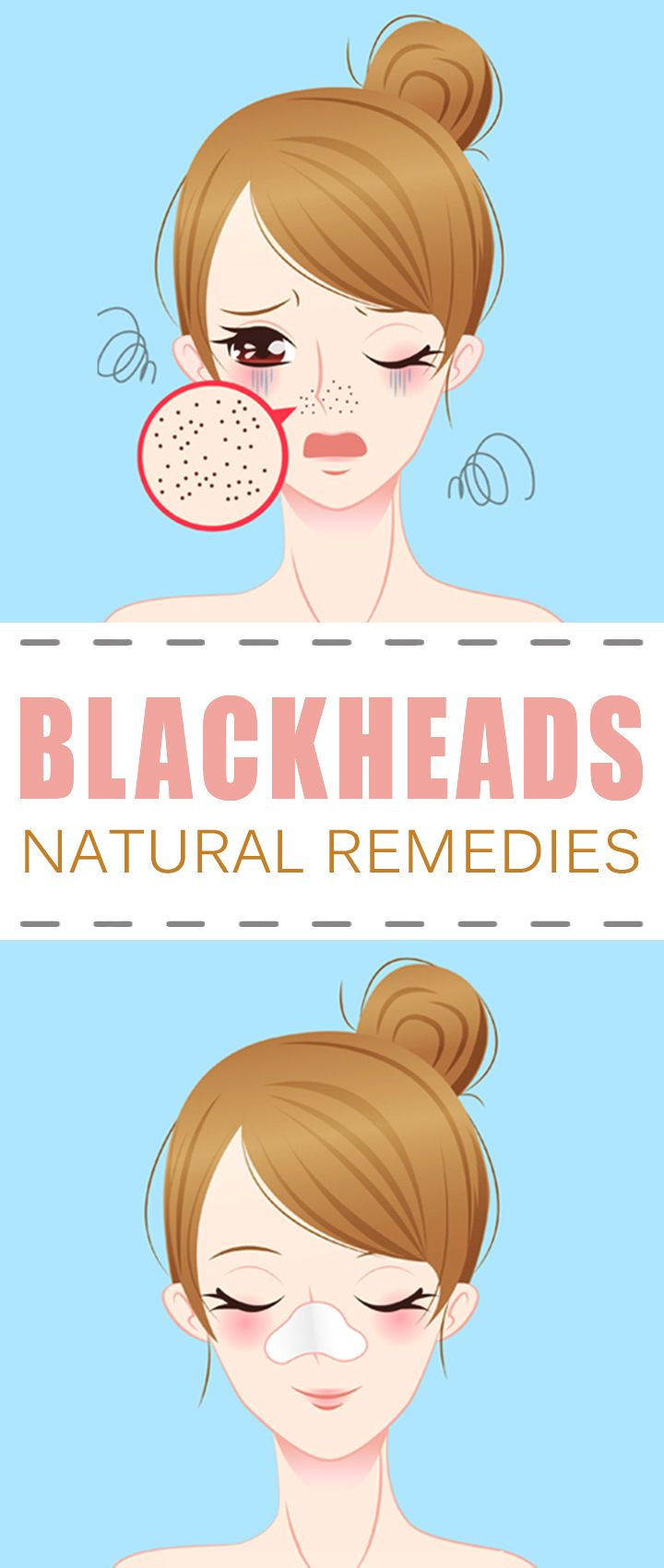 What are Blackheads and How to Treat Them Naturally ? | Healthy Society. blackheads | blackheads removal | blackheads on nose | blackheads removal diy | blackheads entfernen | BlackHeads Mask | BlackHeads Removal Tool |