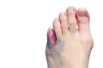 What to Do for a Broken Toe