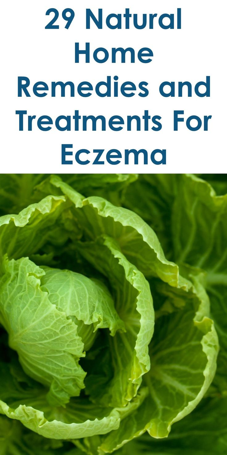 29 Natural Home Remedies and Treatments For Eczema | Tiny Quality Homes