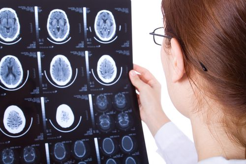 Researchers have discovered that a drug used to treat cancer may have benefits for those with #Alzheimer's disease.