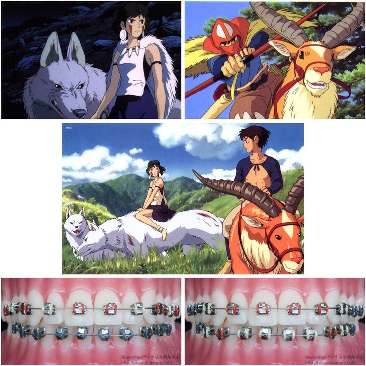 A tribute to one of my favourite movies #princessmononoke #もののけ姫 #アシタカ #ashitaka #san #サン #braces #orthodontics #歯科矯正医 #歯列矯正 #studioghibli #anime #hayaomiyazaki #Movies #movie