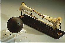 Tibia et péroné droits de Daniel Sickles, exposés au National Museum of Health and Medicine Walter Reed de Washington, à côté d'un boulet de...