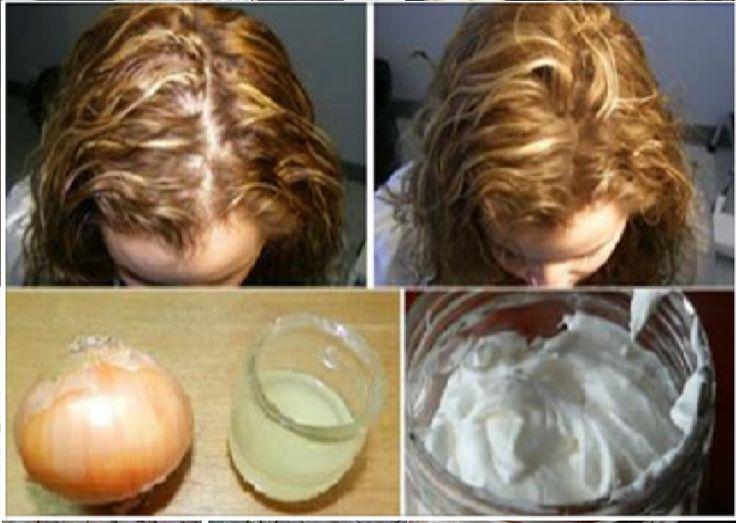Elle A Utilisé Cet Ingrédient Et A Obtenu Des Cheveux Epais Dans 7 Jours   Coiffure simple et facile