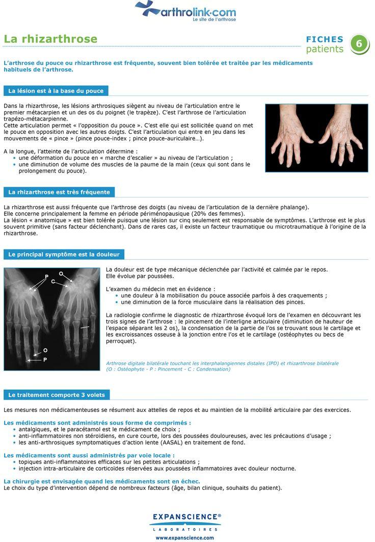 L'arthrose du pouce ou rhizarthrose est fréquente, souvent bien tolérée et traitée par les médicaments  habituels de l'arthrose.