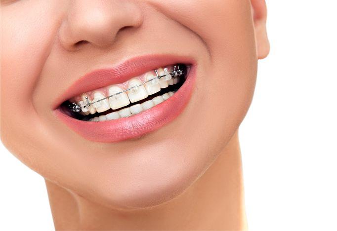 Aparat Damon eliminuje konieczność stosowania tradycyjnej mechaniki, która może wymagać częstszej ekstrakcji zębów. Aparat Damon wykorzystuje niższe siły dowiązań, opór tarcia jest zminimalizowany co prowadzi do zmniejszenia niechcianych sił zarówno jeśli chodzi o wielkość jak i kierunek.