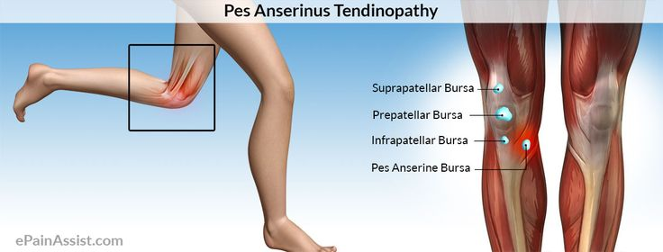 Pes Anserine Bursitis or Pes Anserine Tendinopathy Read: http://www.epainassist.com/sports-injuries/knee-injuries/pes-anserinus-tendinopathy-or-pes-anserinus-bursitis