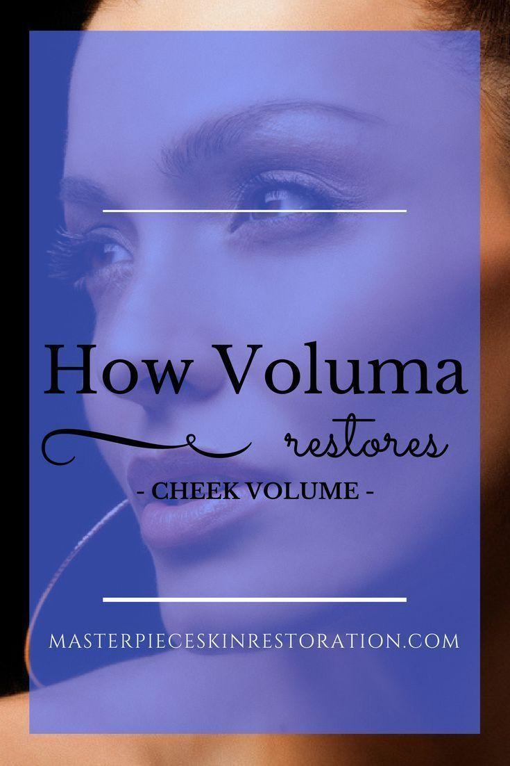 Voluma, Juvederm, Restylane Lyft, cheek volume, facial filler