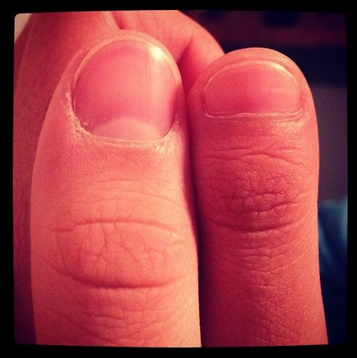 clubbed thumbs - Google Search | Big Toe Thumbs ...