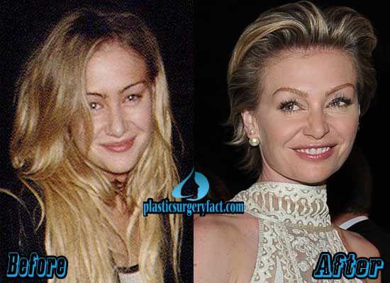 Portia de Rossi Plastic Surgery Before and After | plasticsurgeryfac...
