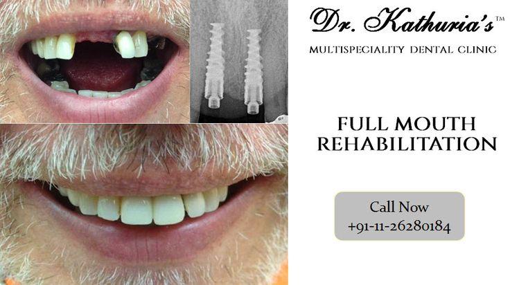 Full Mouth Rehabilitation at Dr. Kathuria's Multispeciality Dental Clinic #FullMouthRehabilitation