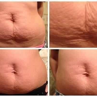 how to get rid of weight loss stretch marks