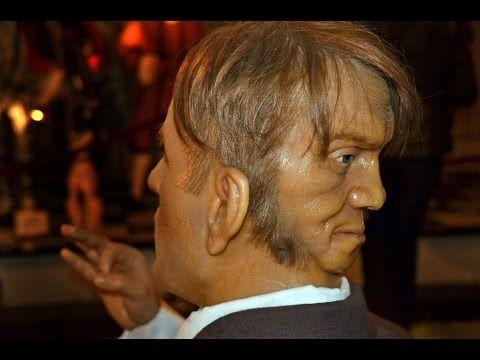 L'incredibile storia dell'uomo con 2 facce