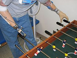 Prosthetic hand was invented by helmut lucas in 1971 canada my home native land pinterest - Who invented table football ...