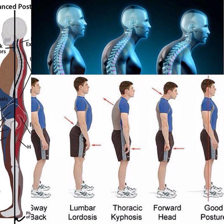 #姿勢 と#痛み Relationship between #posture and #pain  腰痛で整形外科に行かれる場合85%は異常がないと診断され多くは椎間関節症候群とかヘルニア(第一段階)とかと診断されます  筋肉には機能があり多くは屈筋群伸筋群とあってシーソーのように引っ張り合いをっしてますよく言う背骨は背骨だけと思われがちですが本当は脊柱とって実際は脛骨という環椎から尻尾の骨まで繋がり人間は2425の脊椎があります  筋肉にも抗重力筋という姿勢維持筋というのがあり骨は筋肉そして筋膜という強い膜で頭から尻尾までつながるので首を曲げたりそらすだけでも自然と首だけでなく胸の筋肉や腰とかまで伸ばされます  これが崩れると筋肉の張りコリ(硬結)収縮短縮拘縮石灰化とかになってきますこの張りとか拘縮というのは痛みの発痛物資という悪さをしだすので腰痛や肩こりや頭痛などになる一つの要因になります…