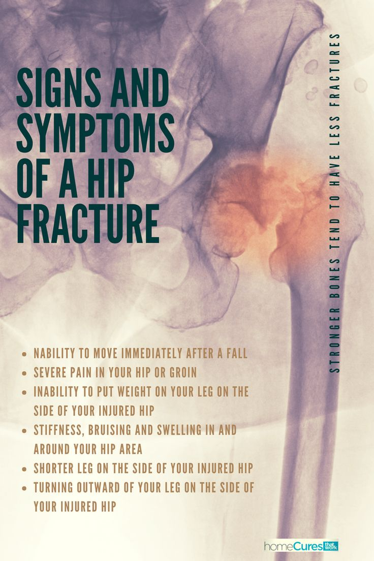 """""""Hip fractures"""" are rarely in the actual joint because they are fractures of the femur. Depending on how the bone is stressed, it will fracture in different locations, creating different hip problems. Signs and symptoms of a hip fracture include... #hipfracture #hipreplacement #hipbone #hipjoint #femur #hippain #injuredhip #naturalremedy #homecuresthatwork"""