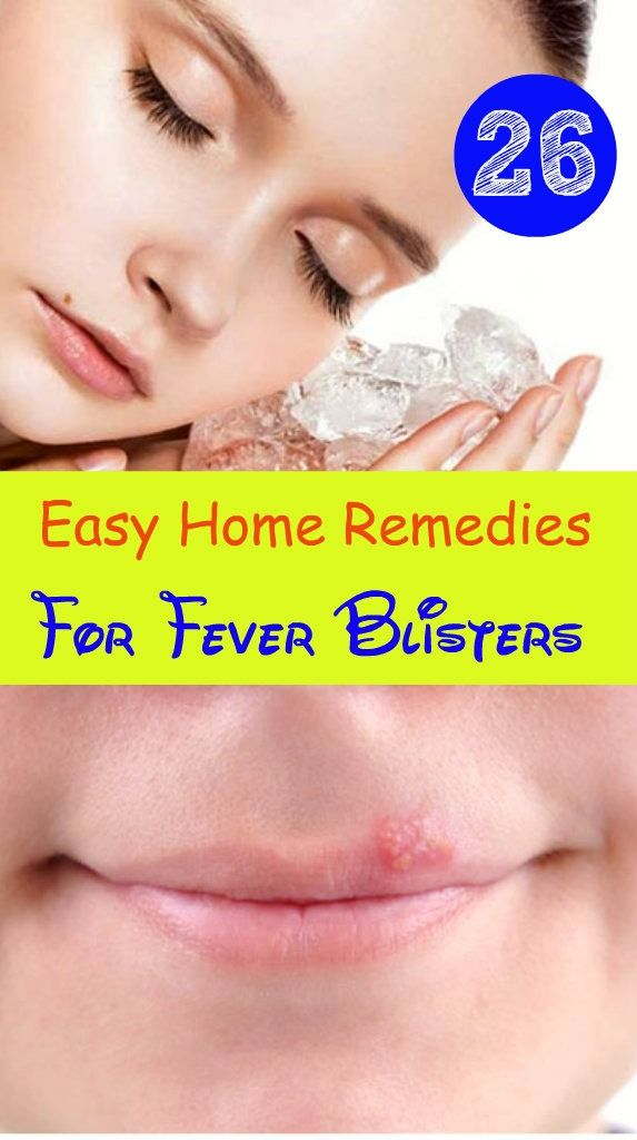 How To Cure A Fever Blister Naturally