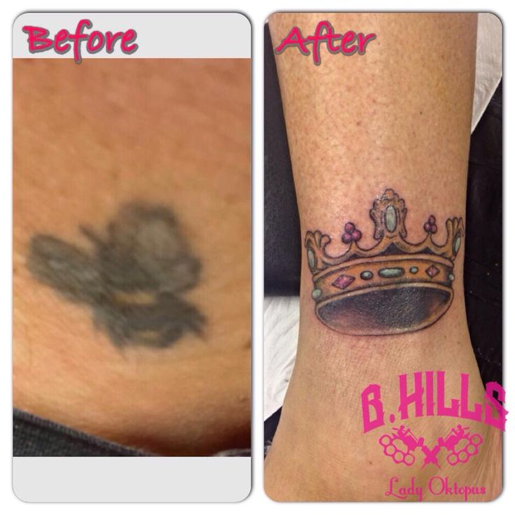 #coverup #tattoo #before #bee #after #color #crow #ink #tattooartist #ladyoktopus