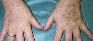 Tratamiento contra las manchas de las manos