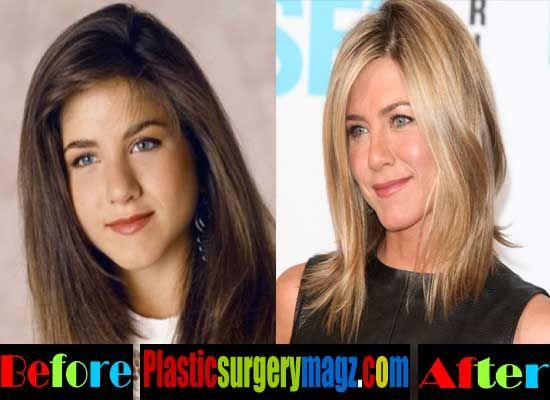 Plastic Surgery Magazine | Jennifer Aniston Plastic Surgery- Jennifer Aniston Nose Job | http://plasticsurgerymagz.com