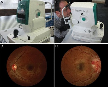 Nonmydriatic retinal photography in the evaluation of acute neurologic conditions