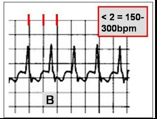 175 best Nursing (Cardiovascular EKG/ECG) images on