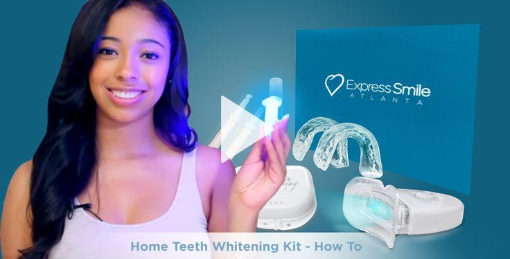 At Home Whitening Kit - Only $35! Regular Price $75! – Express Smile Atlanta