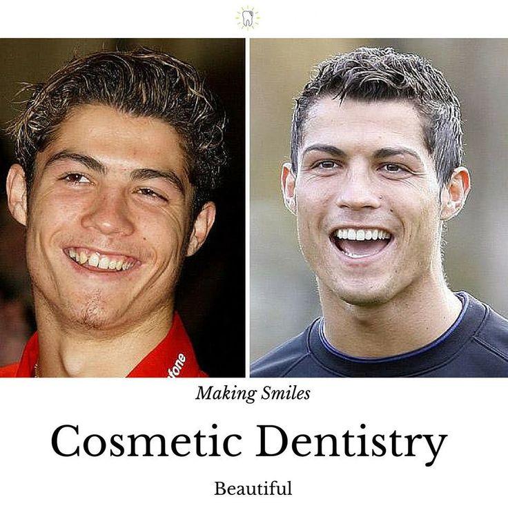 Cristiano Ronaldo! Great smile Great Footballer #cristianoronaldo  #dentalhealth #dentist #dentists #teeth #smile #dentistry #oralhealth #dentalhygiene #teethwhitening #realmadrid  www.brighttooth.com