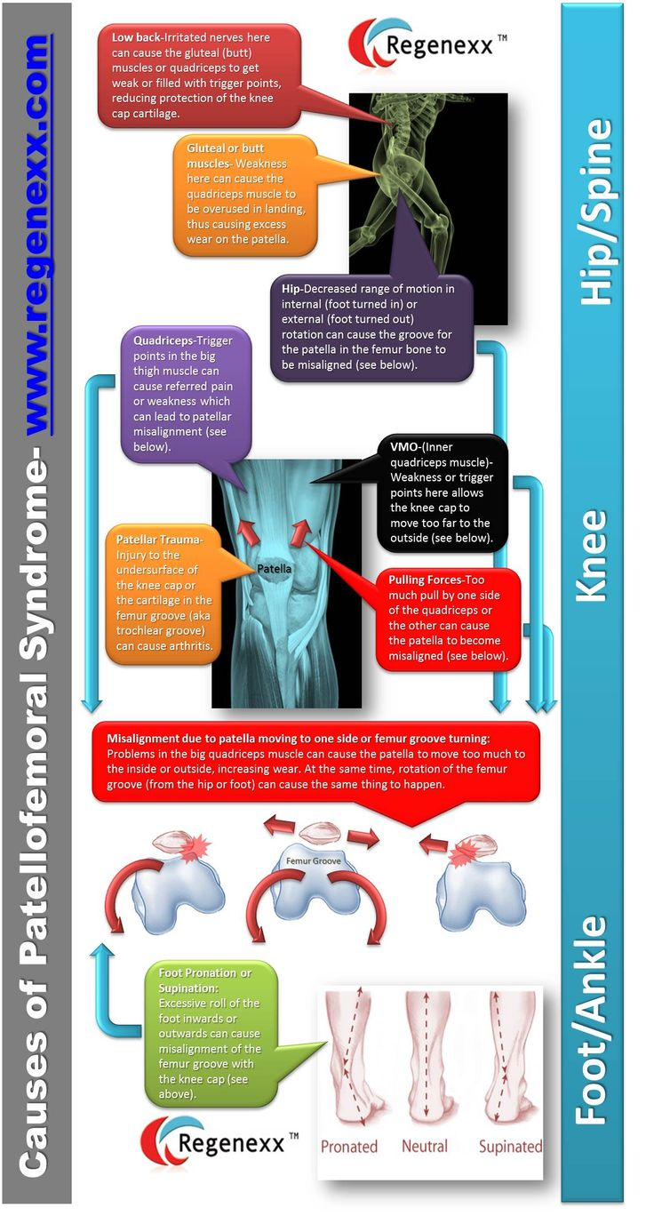 Knee pain diagnosis chart - Patellofemoral Pain Syndrome Infographic Regenexx Considering The Hip And Ankle And Using